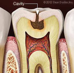 Cavity and Fillings in Norfolk, MA