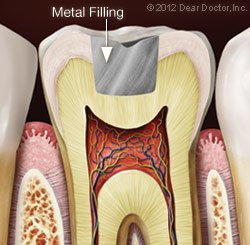 Metal Fillings in Norfolk, MA